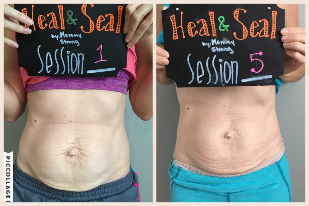 Diastasis Recti | Postpartum Tummy | Heal & Seal | Mommy Strong | Columbia SC Moms Blog