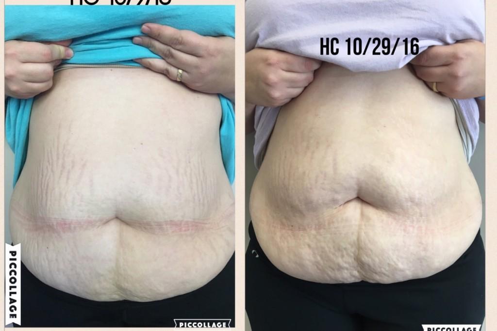 Diastasis Recti | Postpartum Tummy | Heal & Seal | Mommy Strong | Columbia SC Moms Blog